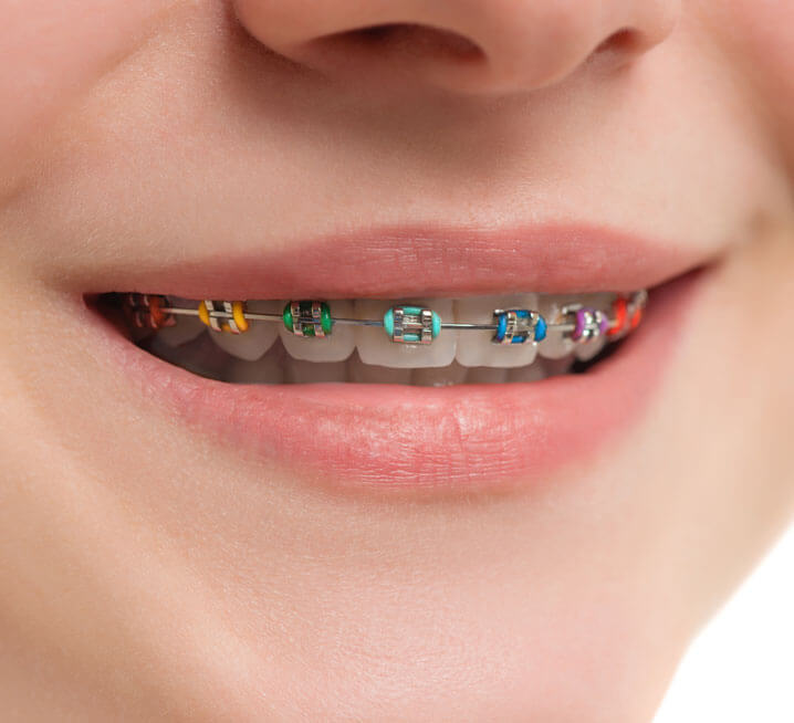 Insignia Braces Orthodontic Treatment Invisible Orthodontics